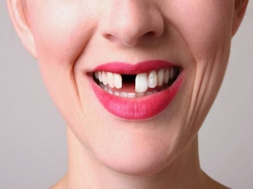 Nằm mơ thấy rụng răng mang điềm lành hay xấu?